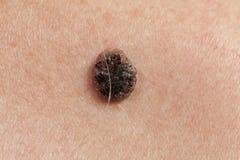 Carcinoma Keratinizing för squamous cell av huden Royaltyfria Bilder