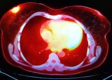Carcinoma periareolar do peito da varredura do ct do animal de estimação Imagem de Stock Royalty Free