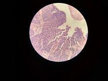 Carcinoom van de Urothelial het overgangscel stock foto's