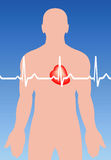 Cardiac arrhythmia Royalty Free Stock Image