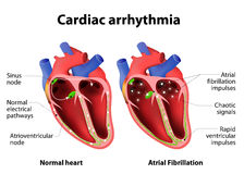Cardiac arrhythmia. Cardiac dysrhythmia or irregular heartbeat. Medical illustration Stock Photos