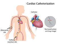 Cardiac catheterization. Procedure for diagnosis of heart attack stock illustration