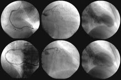 Cardiac catheterization and coronary angiography Stock Photo