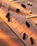 Cardiac Diagnosis Royalty Free Stock Photos