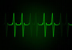 Cardiac Frequency in Green Colour Stock Images