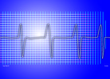Cardiac graph blue Stock Images
