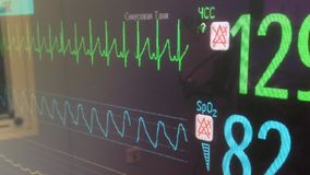 Cardiac monitor stock footage