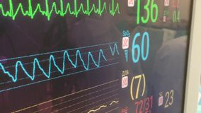 Cardiac monitor stock video footage