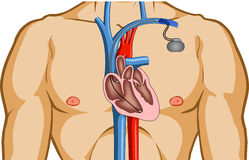 Cardiac Pacemaker Stock Photo