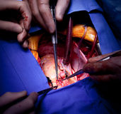 Cardiac surgery heart operation Royalty Free Stock Photography