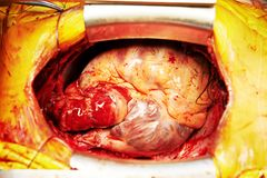 Cardiac surgery heart transplantation Stock Image