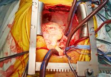 Cardiac surgery heart transplantation Stock Photography