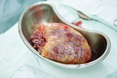 Cardiac surgery heart transplantation Royalty Free Stock Image