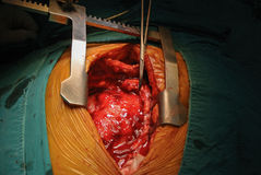 Cardiac tumor. Median sternotomy tumor removal Stock Photo