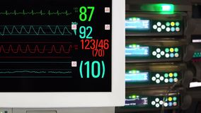 Cardiac and Vital Sign Monitoring. Medical Equipment in ICU. Cardiac and Vital Sign Monitoring stock video