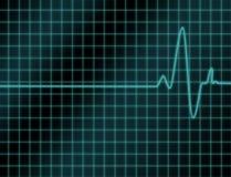 Cardio- sortie de lecture Photo stock