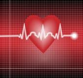 Cardio tracing Royalty Free Stock Photos