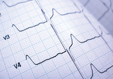 Cardiograaf Royalty-vrije Stock Foto's