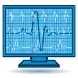 Cardiogramüberwachungsgerät Lizenzfreie Stockfotografie