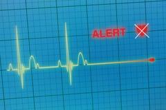Cardiogram сердцебиений на мониторе Стоковые Фото