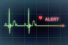 Cardiogram сердцебиений на мониторе Стоковая Фотография