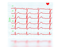 The cardiogram №1 Stock Image