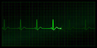Cardiogram. On the monitor. Black background. EPS (8.0) also included Stock Photo