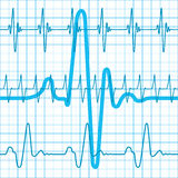 Cardiogram Royalty Free Stock Photo