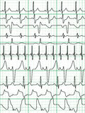 Cardiogram. A set of 10 diagrams as a seamless pattern, but each object is fully editable and Royalty Free Stock Image