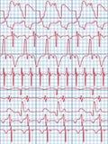 Cardiogram Stock Afbeelding