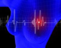 Cardiogram Stock Images