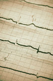 Cardiogram Stock Photography