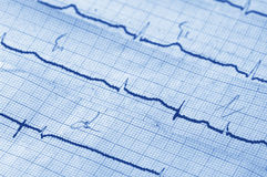 Cardiogram fotografie stock