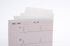 cardiogram Royaltyfri Fotografi