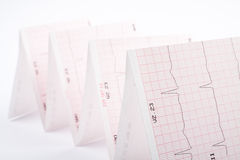Cardiogram. Photo of real electrocardiogram graph Stock Images