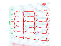 The cardiogram №2 Royalty Free Stock Photo