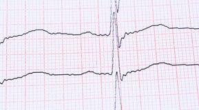Cardiogram. Stock Images