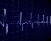 Cardiogram Royalty Free Stock Image