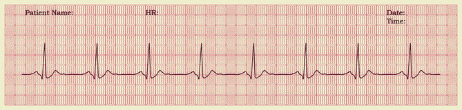 Cardiogram. Paper cardiogram with pulse, vector illustration Stock Image