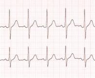 Cardiogram fotografia stock libera da diritti