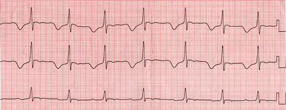 Cardiogram. The graphs of an electrocardiogram Stock Photo
