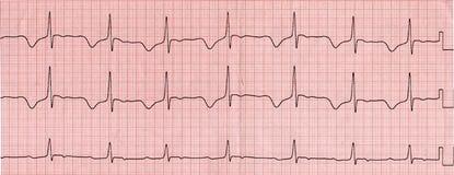 cardiogram Arkivfoto