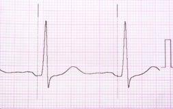 cardiogram Arkivbilder