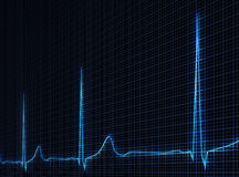 Cardiogram Royalty Free Stock Photos