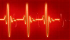 cardiogram Lizenzfreie Stockbilder