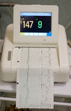 Cardiogram. In the hospital room Royalty Free Stock Photos