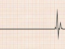 Cardiogram. An illustration of an cardiogram. A white grid background Royalty Free Stock Photos