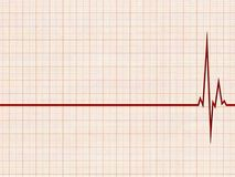 Cardiogram. An illustration of an cardiogram. A white grid background Stock Photography