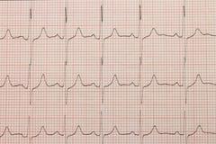 Cardiogram close-up Royalty Free Stock Image