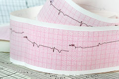 Cardiogram the concept for strokes and heart attacks Stock Images